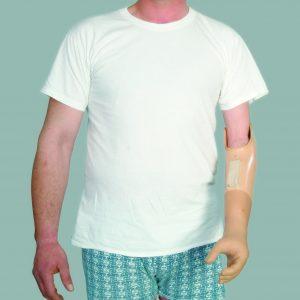Kol Protezleri
